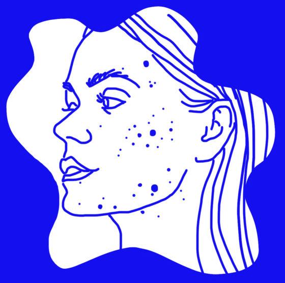 Illustrasjon av kvinne med akne