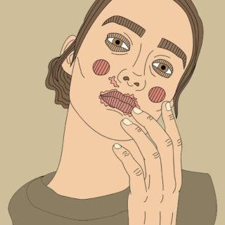 Illustrasjon av kvinne med perioral dermatitt